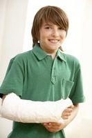 Juegos electrónicos de mano limitada y la movilidad del brazo