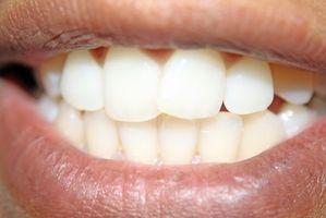 Cómo corregir los dientes en fotos